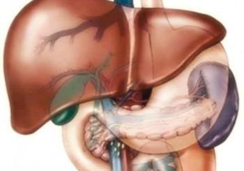 Epatite, steatosi e cirrosi epatica
